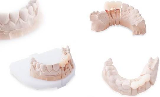 Korony na implantach zębowych